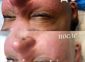 Чистка лица, пилинги